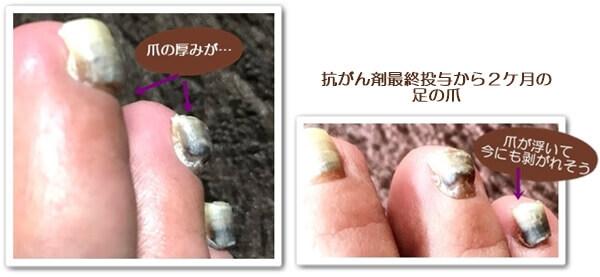 最終抗がん剤から2ケ月の爪0214