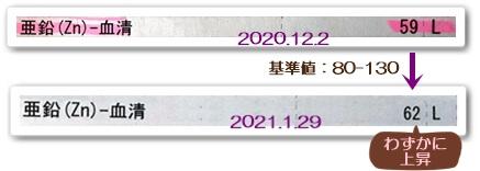 亜鉛20201202