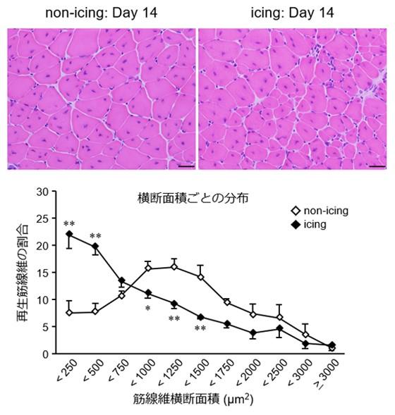 アイシング 冷却 筋肉 回復 神戸大学 千葉工業大学